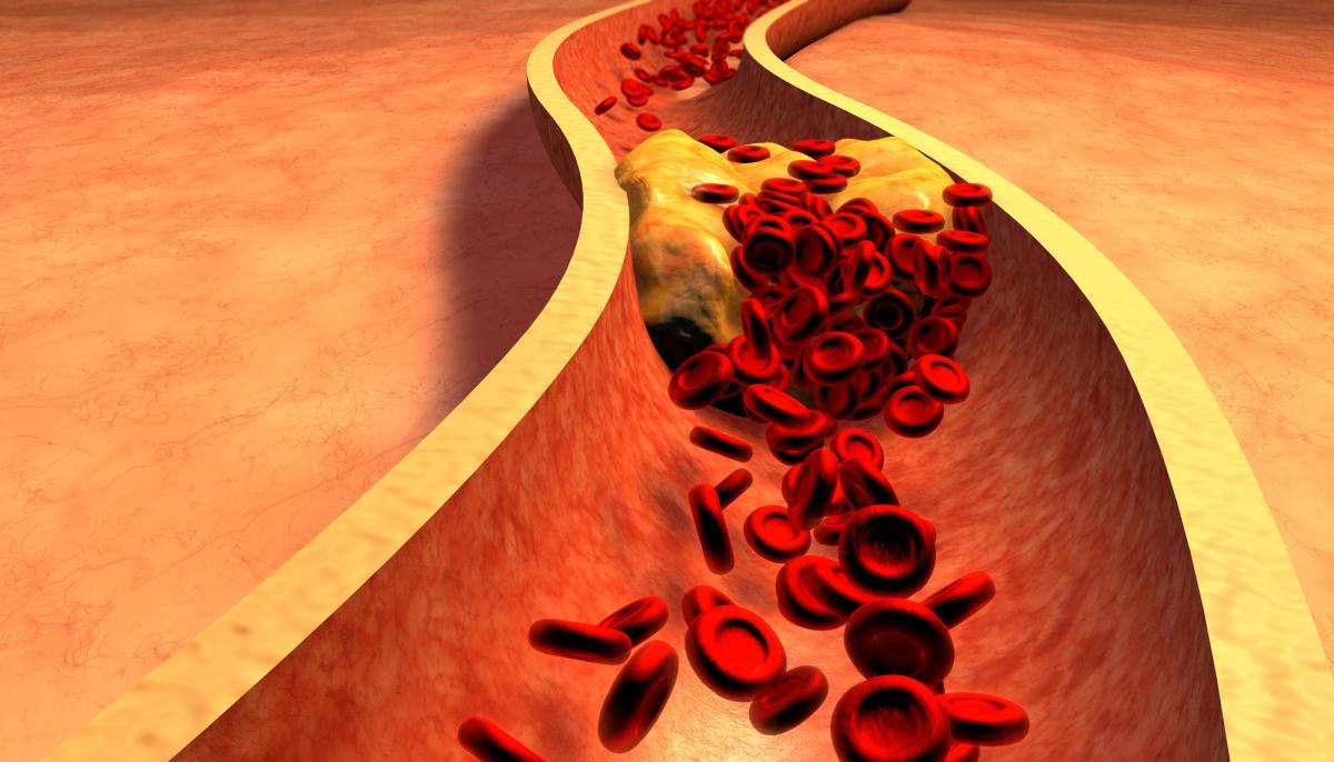Atherosclerosis-2000x1197 SDpQz8