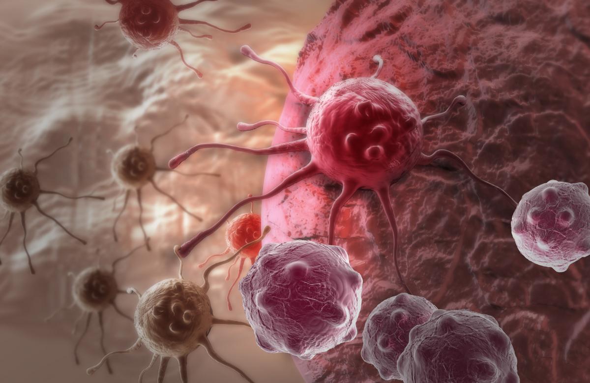 Cancer-Cells-2000x1298 SOuh0e